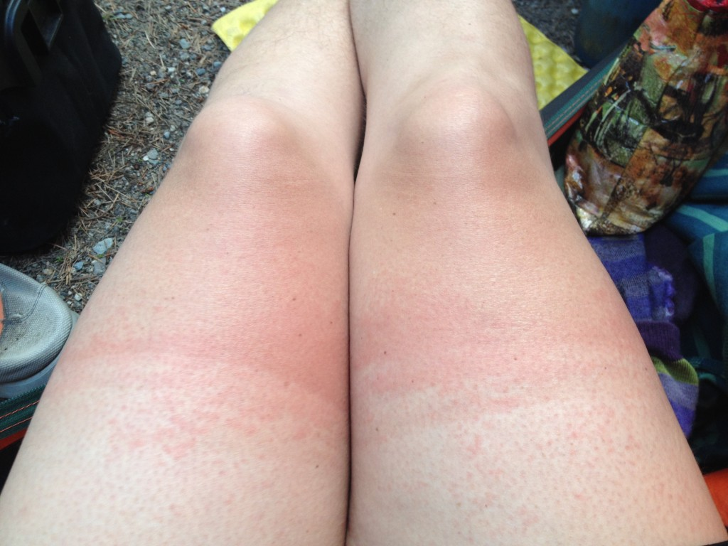 Sun burn and heat rash - can you believe this is only April 20?